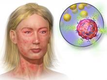 Симптомы, первая помощь и принципы профилактики при анафилактическом шоке