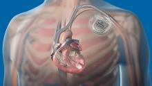 Электрокардиостимуляторы снижают частоту обмороков у пациентов